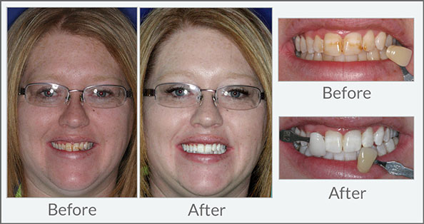 Teeth Whitening Dental Excellence